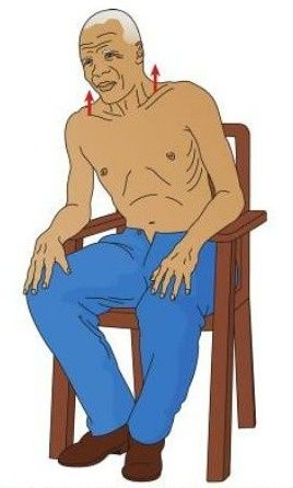 typical posture of a person with COPD - primarily emphysema - the person tends to lean forward and uses the accessory muscles of respiration to breathe, forcing the shoulder girdle upward and causing the supraclavicular fossae to retract on inspiration