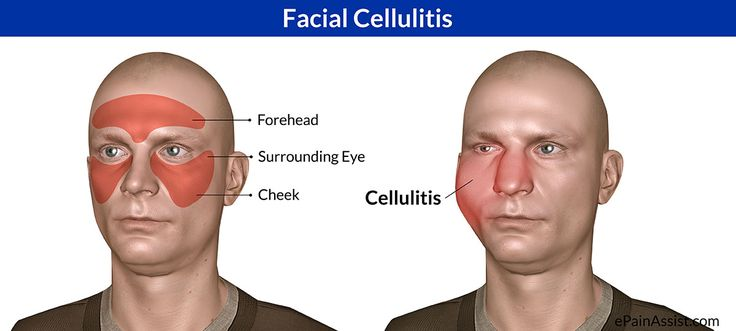 Learn more about Facial Cellulitis, possible Causes, Risk Factors, Signs, Symptoms, Investigations, Treatment.