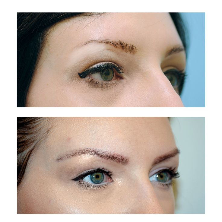 5 Ways to Say Goodbye to Sparse Brows for Good | Thin ...