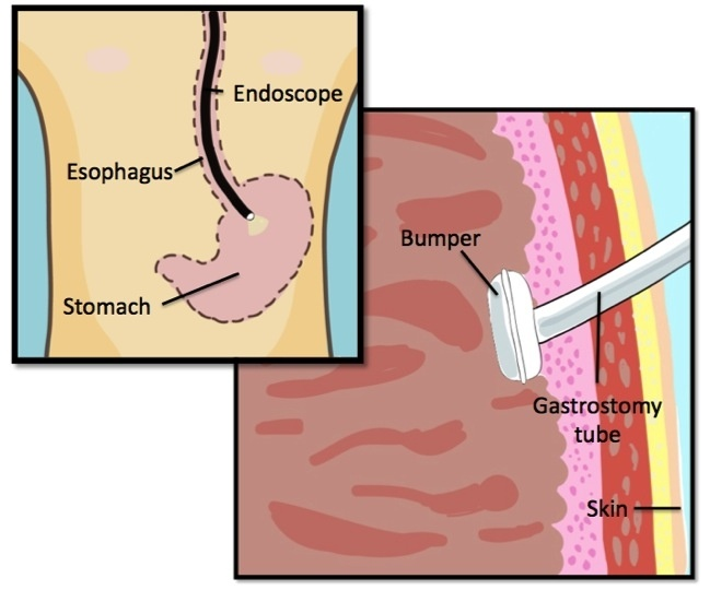 21 best G-tubes and Ostomies images on Pinterest Nursing - wound ostomy continence nurse sample resume
