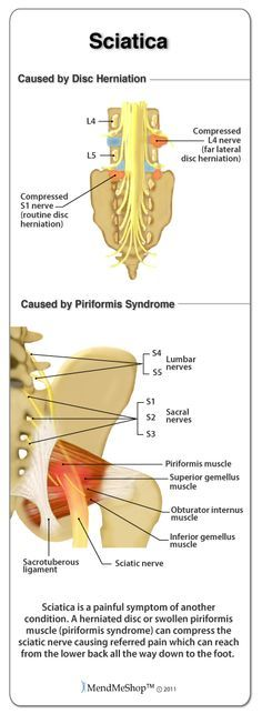 Pinching of a sciatic nerve can be caused by disc herniation and piriformis syndrome.