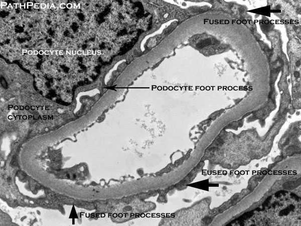 focal segmental glomerulosclerosis electron microscopy (effacement of foot processes) - Google Search