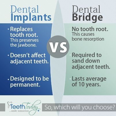Dental Implants vs. Dental Bridge: Dental implants replace the tooth root which preserves the jaw bone, doesn't affect adjacent teeth and is designed to be permanent. A dental bridge leaves no tooth root which causes bone resorption, requires sanding down the adjacent missing teeth and lasts only 10 years.