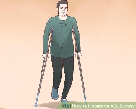 Image titled Prepare for ACL Surgery Step 16
