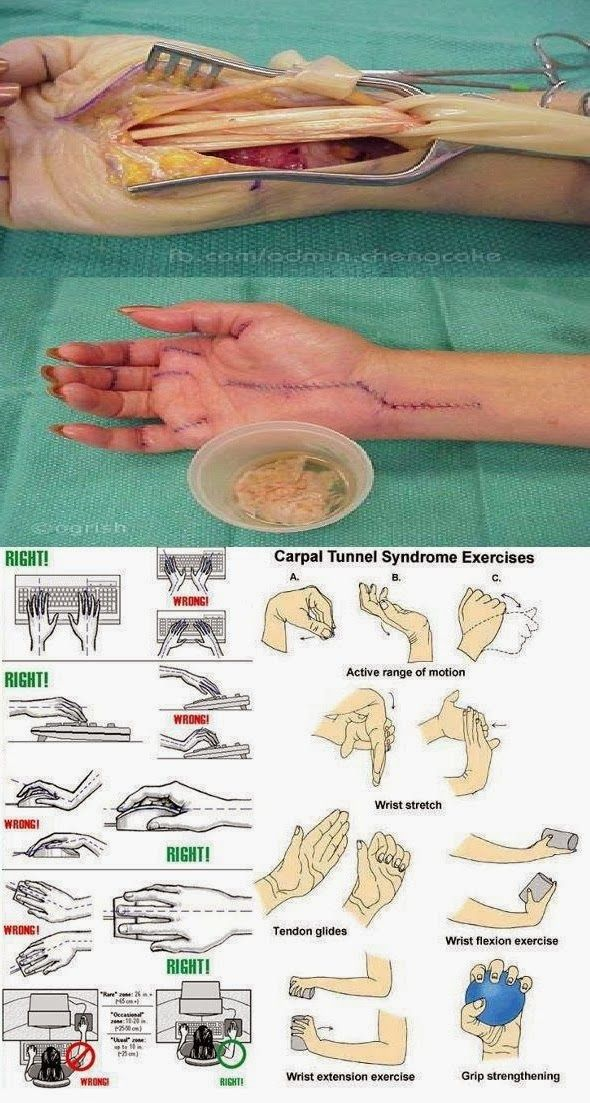 Exercise to prevent Carpal Tunnel Syndrome.
