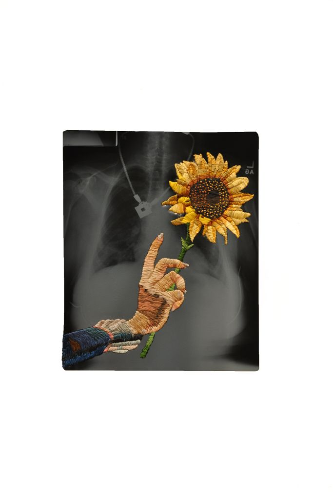 Sunflower   Embroidered X Rays Matthew Cox