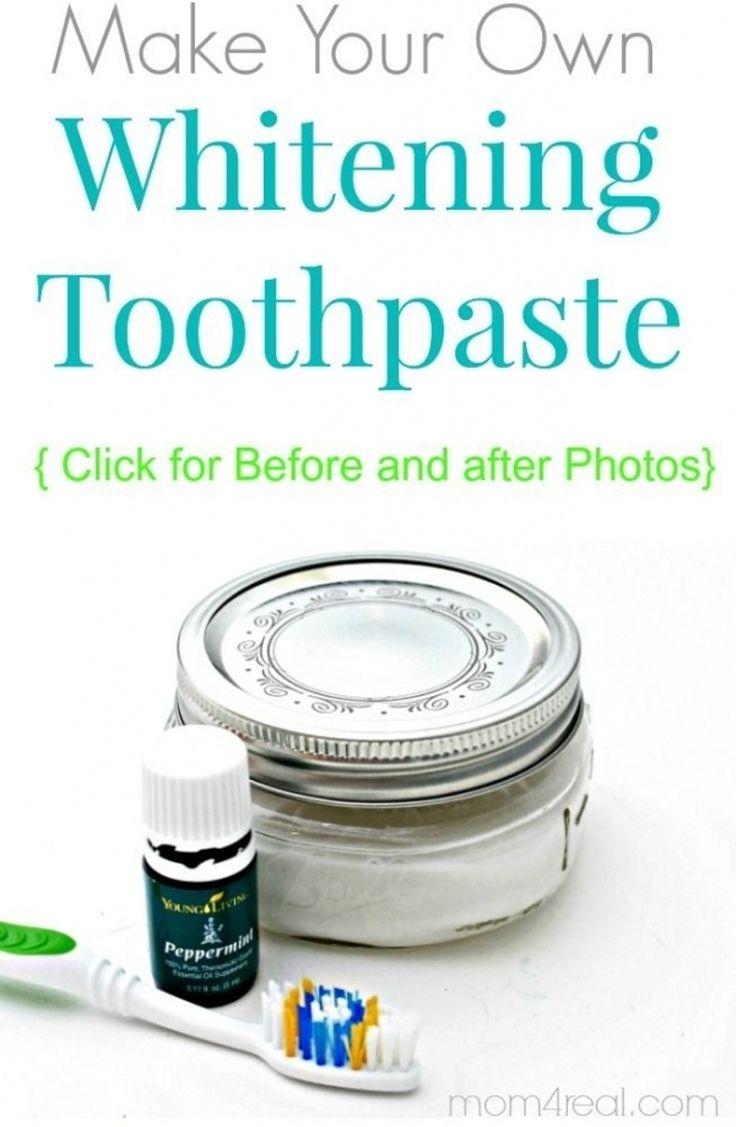 teeth whitening classes online