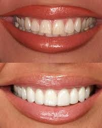 A whole new smile!...veneers are thin shells that are laid onto the teeth and bonded to the surface.