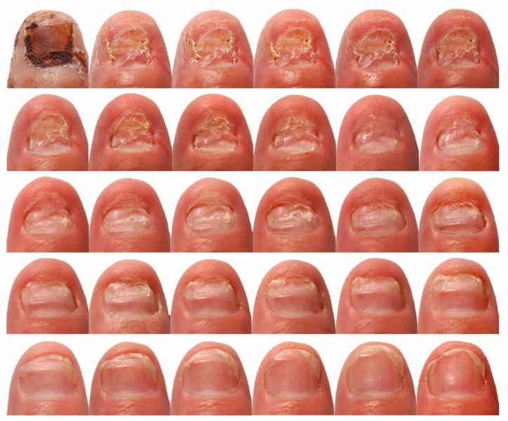 Does Vicks VapoRub cure toenails fungus? | Pinterest | Vicks vaporub ...