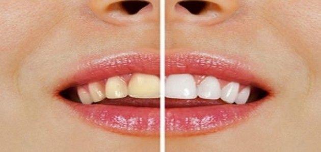 Pourquoi vous devriez vous brosser les dents avec du sel de mer et du bicarbonate de soude