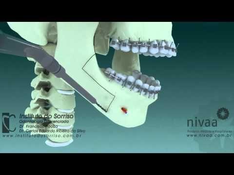 Cirurgia Ortognática: MELHOR VÍDEO COM A MELHOR EXPLICAÇÃO!!! - ORTOBLOG