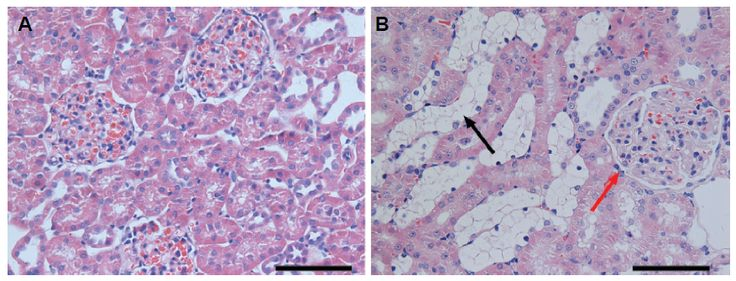 Figure 4 Hematoxylin and eosin staining of the renal cortex of (A) normal rats and (B) diabetic rats.