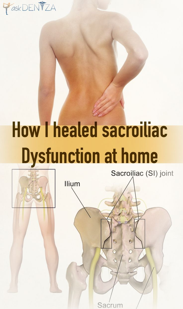 A pinner says:  I struggled with back pain for years due to SI joint inflammation. Here is how I healed myself at home! Natural remedies for you! http://askdeniza.com/home-remedies-for-si-joint-dysfunction/