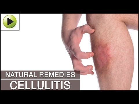 Home Remedies for Cellulitis | TREATMENT&HERBS