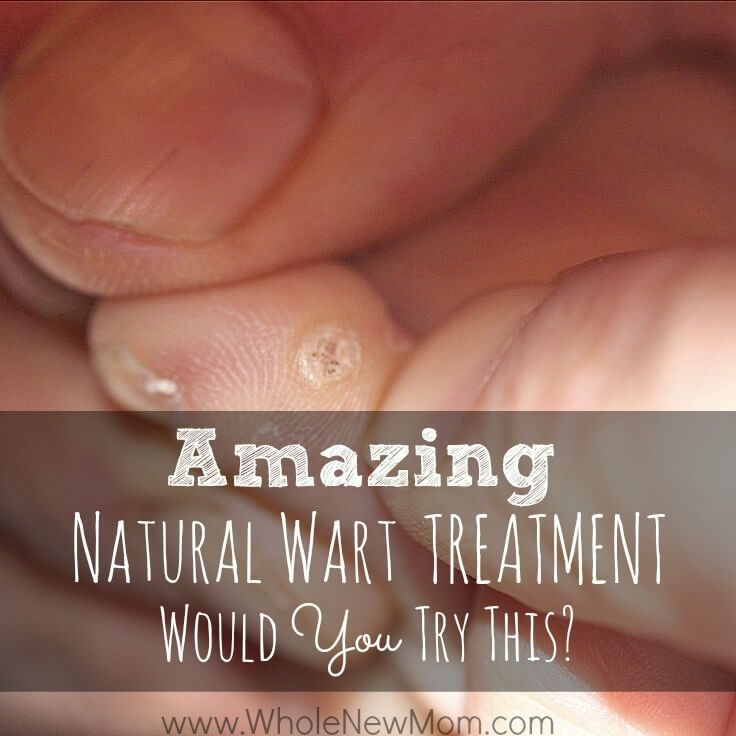 Got a wart that needs to go? This Natural Wart Remedy is the cheapest one around and it really works! I tried several natural wart remedies, but this worked the best. Would YOU try this?