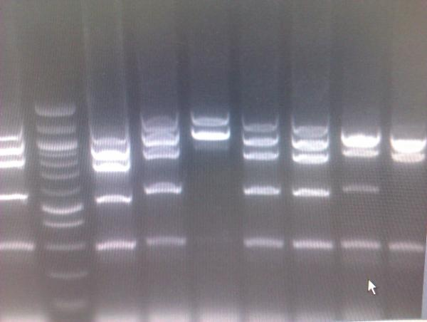 a research on the biotechnology gel electrophoresis As a basic concept, gel electrophoresis is a biotechnology technique in which macromolecules such as dna, rna or protein are fractionated according to.