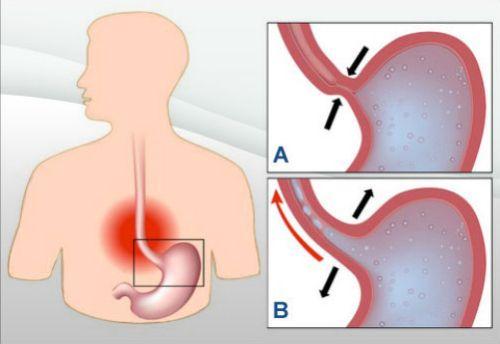 O refluxo é um problema de saúde muito comum, caracterizado por uma dor estomacal, uma sensação de ardor atrás do estômago que as vezes