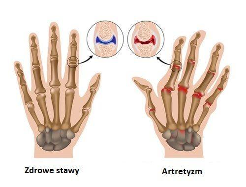 Artretyzm – 7 niezbędnych zasad
