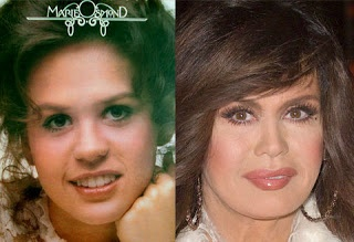 Chatter Busy: Marie Osmond Plastic Surgery