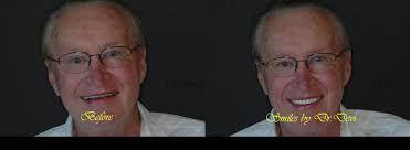 ALL ON 4 dental Implants in Sun City, AZ