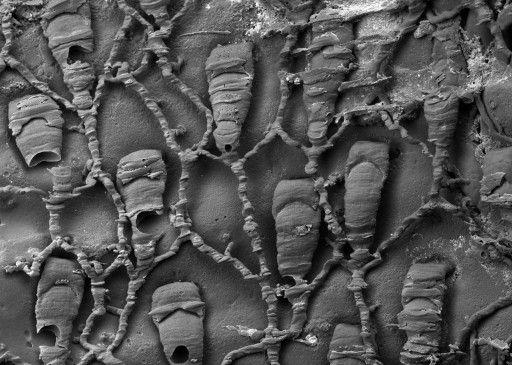海洋性環形動物の棲管内で発見された微生物「Protulophila」のポリプと接続の構造を、樹脂包埋法を用いて走査型電子顕微鏡で撮影した画像。(c)AFP=時事/AFPBB News