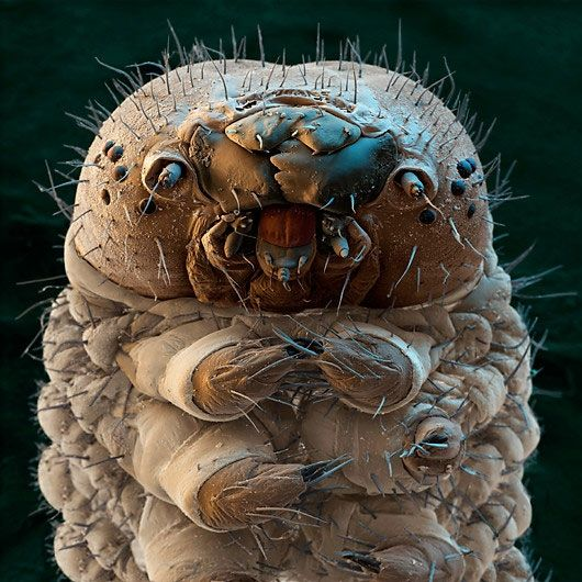 Silkworm. Coloured scanning electron micrograph (SEM) of the head of a silkworm moth caterpillar (Bombyx mori). The silkworm uses its chewing mouthparts (upper centre) to feed on mulberry leaves. On either side of the mouthparts is an antenna and several simple eyes (ocelli, black round structures, upper left and right). The caterpillar has three pairs of jointed legs behind the head (lower centre). Most caterpillars also have prolegs further along the body (not seen).