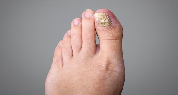 Remediul garantat ce distruge micoza unghiilor. Faceţi această combinaţie şi veţi scăpa de infecţie - Sanatosi.com