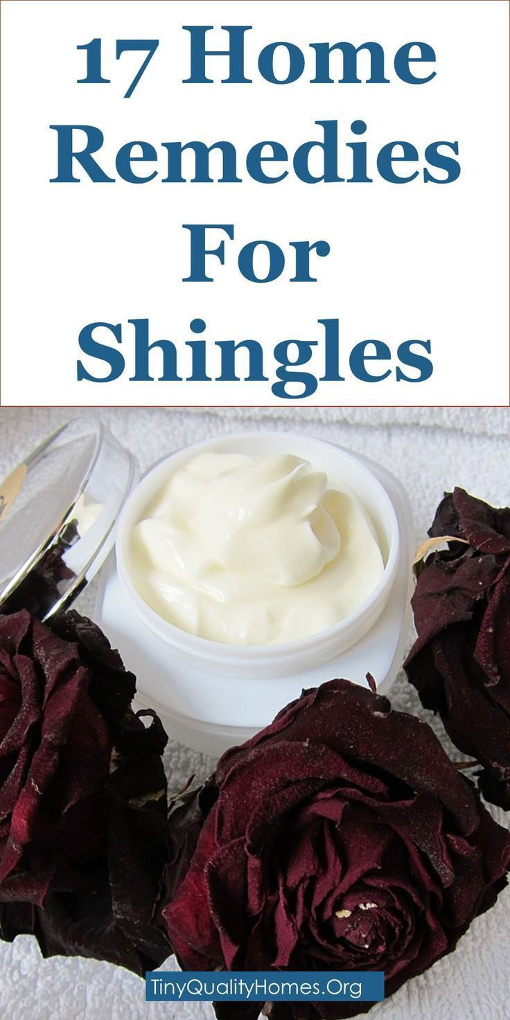 17 Home Remedies For Shingles: This Guide Shares Insights On The Following;  Shingles Nerve Pain Relief, Shingles Pain Management, Shingles Pain Relief, Shingles Pain Relief Apple Cider Vinegar, Shingles Pain Relief Home Remedies, Shingles Rest Or Exercis