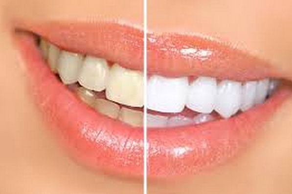 El problema de los dientes manchados  suele ser cuestión de estética y un identificador acerca de la limpieza bucal. Y tal vez tu pregu...