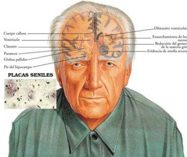 Qué es la demencia senil