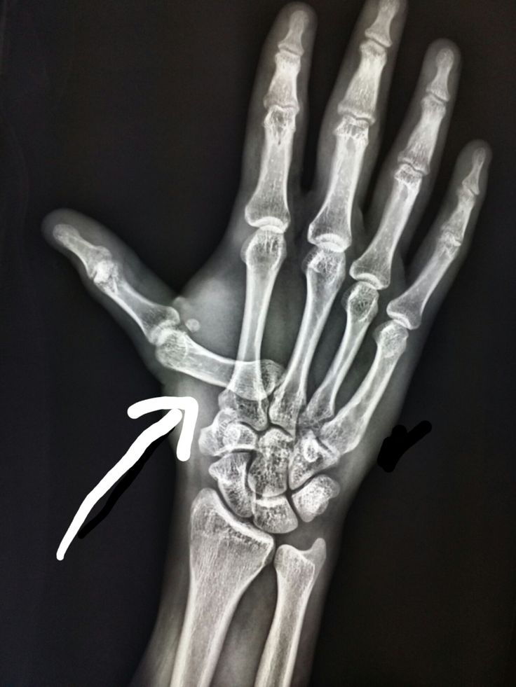 77 best Unusual X-rays images on Pinterest