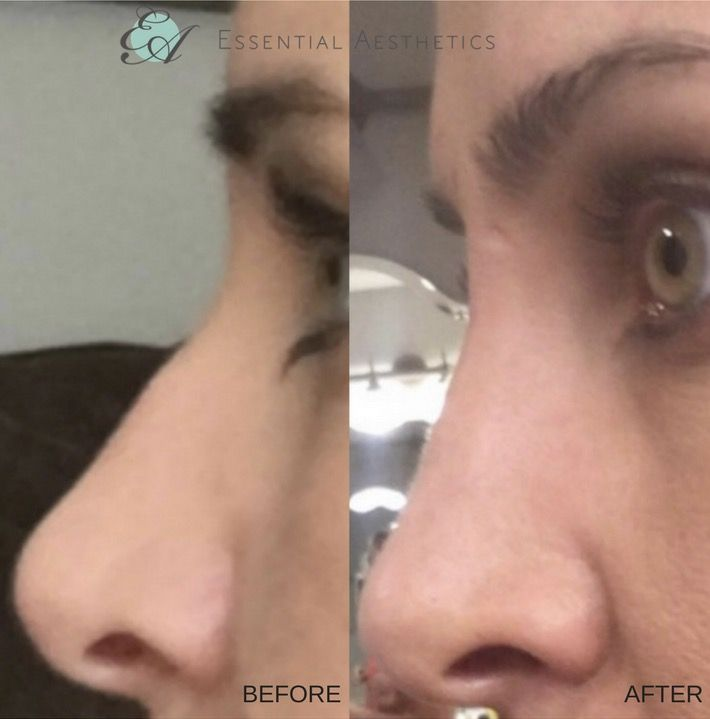 A happy patient's Before & After her Nose Reshaping Procedure treated by Elham Zarnegar using Dermal Filler (Juvederm)