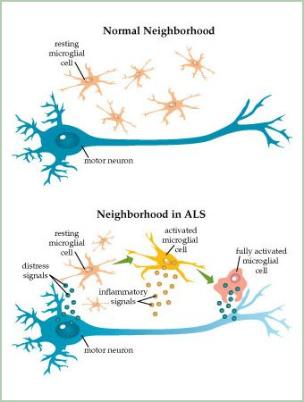 36 best images about stem cells motor neuron disease on for Motor neurone disease causes
