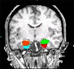 high resolution MRI