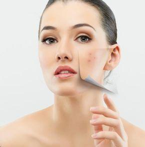 Cómo quitar manchas de acné con bicarbonato
