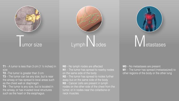 LungCancer-TNM-Infographics.jpg (1920×1080)