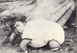 lzoria Green, the Turtle Girl had 24 fingers and toes and was twice married***