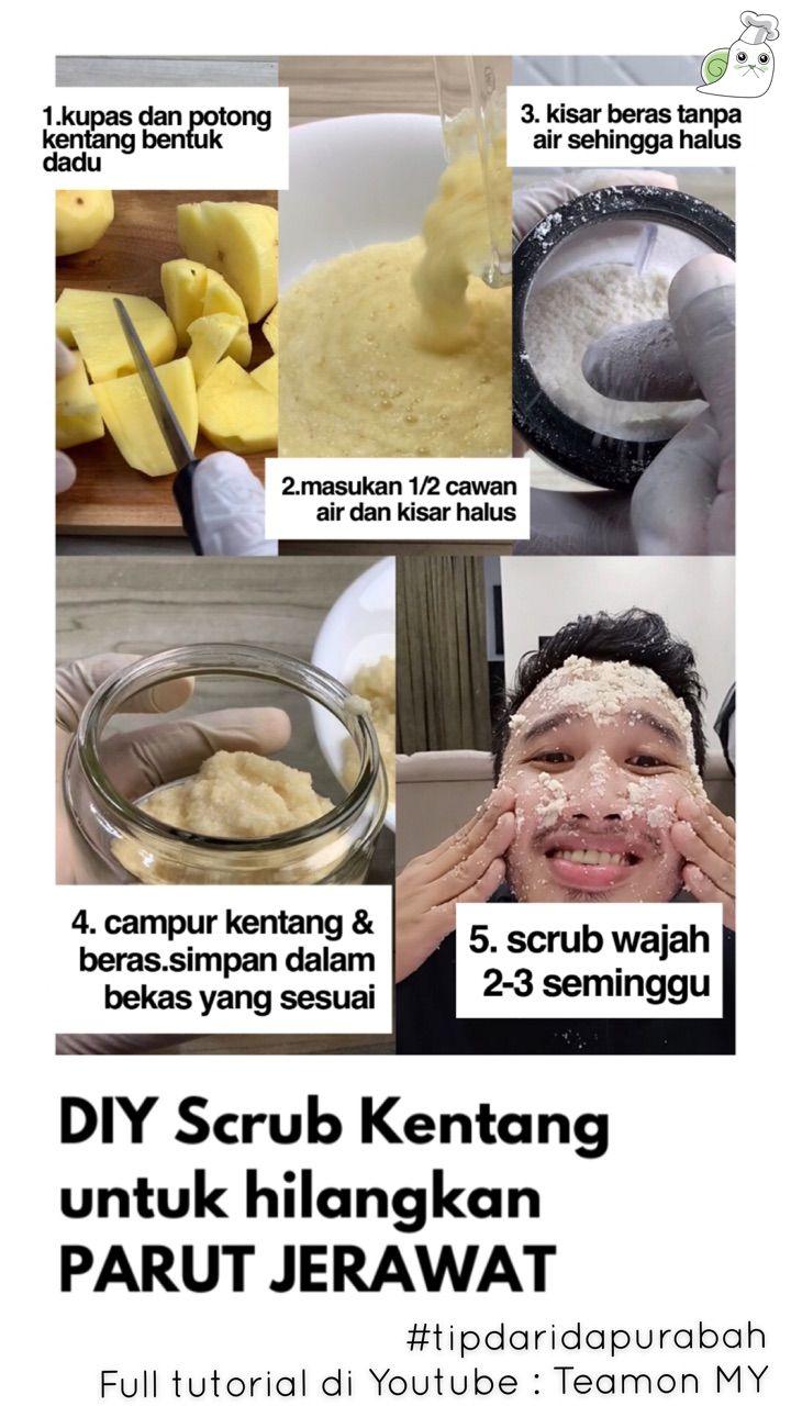 Makanan Yang Tidak Boleh Dikonsumsi Untuk Wajah Berjerawat