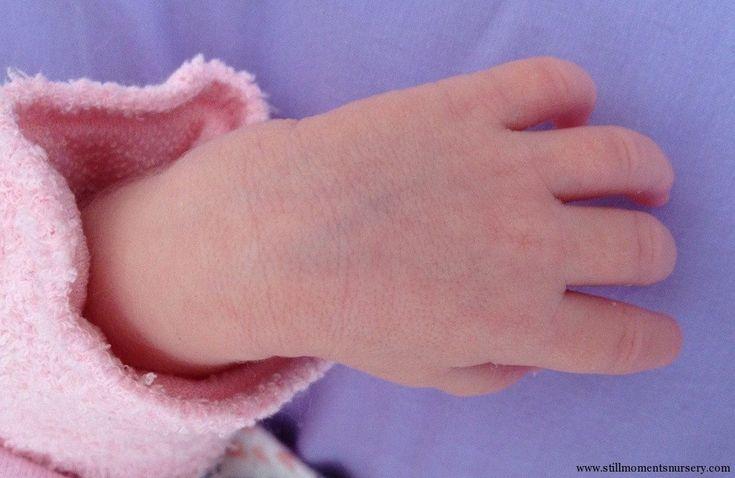 newborn face veining - Google Search