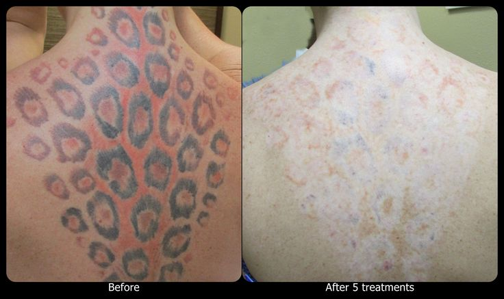 1000 images about vanish laser tattoo removal progression for Raised tattoo after healing