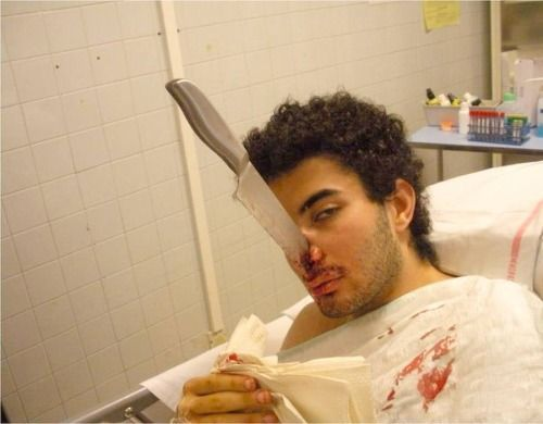 171 best images about gross look if you dare on for Top knife the art craft of trauma surgery