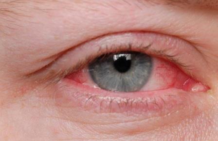 Remédios Caseiros para eliminar a coceira nos olhos tratamentos naturais usando produtos que encontramos em nossa casa para a coceira nos olhos
