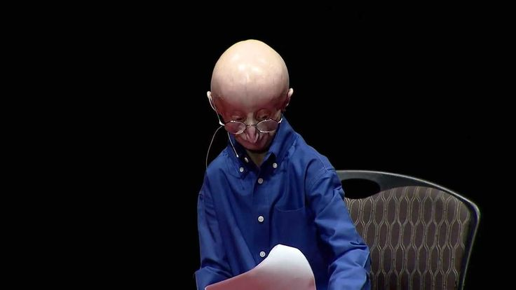 """My Philosophy for a Happy Life: Sam Berns at TEDxMidAtlantic 2013 """"Being brave isn't supposed to be easy.""""  Sam's TEDx talk is now on YouTube! Help us get it in front of the world~Will you share this with your friends?""""  """"I have a very happy life...as I am striving to change the world, I will be happy.""""  Keep moving forward!"""