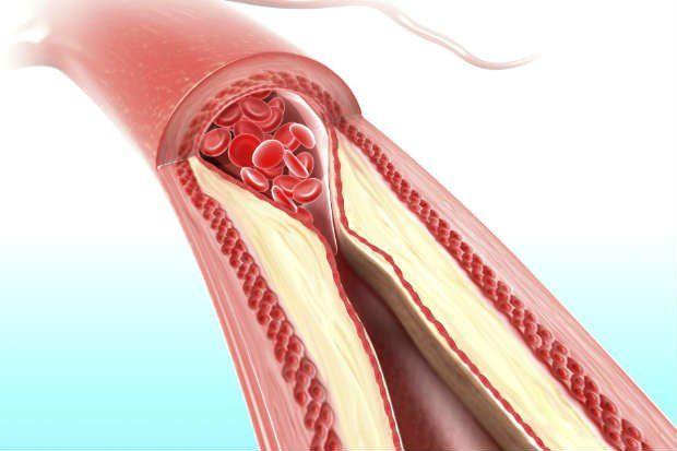 O infarto (ataque cardíaco) tem como principais causas o colesterol alto, a hipertensão e o tabagismo. Conheça os sintomas do infarto e tratamentos.
