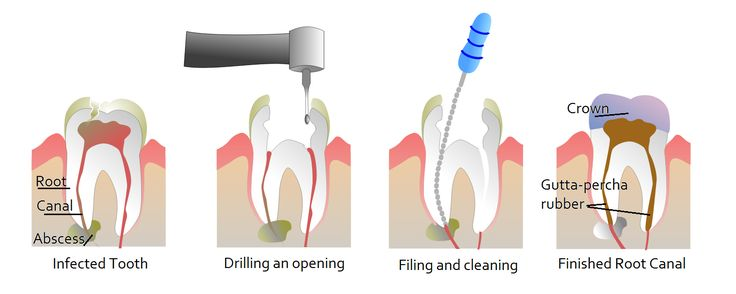 """Get """"Comprehensive #Dental #Care"""" through experienced dentists at """"SCODE #DentalClinic"""", located in Safdarjung Enclave South Delhi, New Delhi in India. if you looking for the quality #Dental #treatment for your missing teeth at affordable costs or if you have any question regarding you #dental Problem please feel free to contact us at +91-9818916969 / +91-9818004488 / +91-9599645706 To know more Call SCODE INDAI #Dental #Clinic In Delhi"""