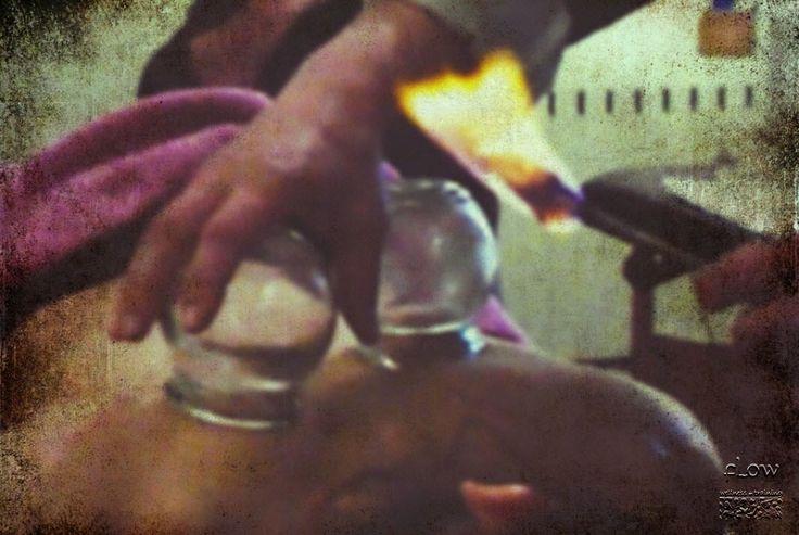 Βεντούζες φωτιάς - βεντουζοθεραπεία σεμινάριο στην Αθήνα! Fire Cupping!!!