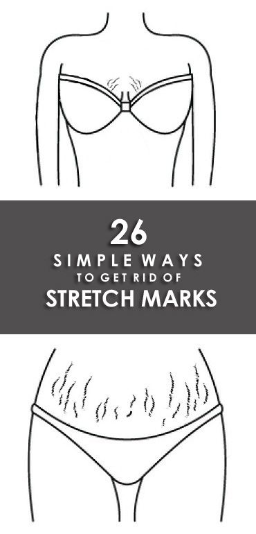 How To Remove Stretch Marks Naturally ?