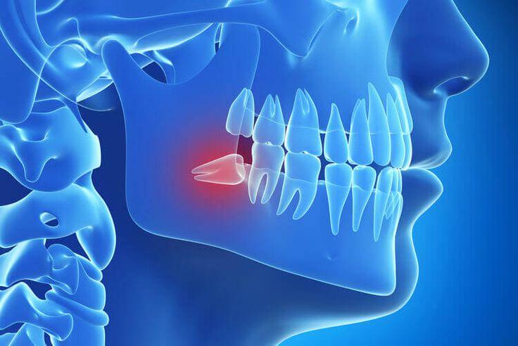 Rất nhiều người than rằng khi răng khôn bắt đầu nhú lên đã cảm thấy đau nhức và gặp nhiều khó khăn... Vậy thực tế mọc răng khôn trong bao lâu hết đau?