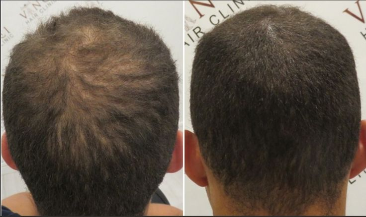 Thanks to the Micro Scalp Pigmentation treatment, we can blend the hair you have with MSP to camouflage the thinning areas. #MSP #vincihair #hairloss #SMP #camouflage #hair #scalppigmentation
