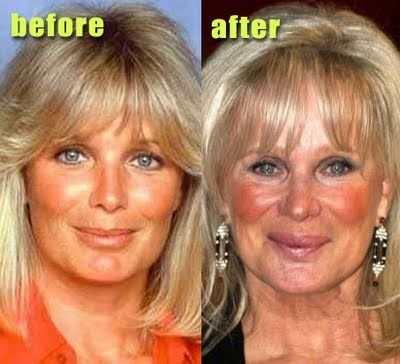 Chatter Busy: Linda Evans Plastic Surgery.  What a waste.
